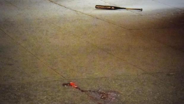 1 Dead, 5 Hurt In Bloody Melee Outside Bronx Nightclub