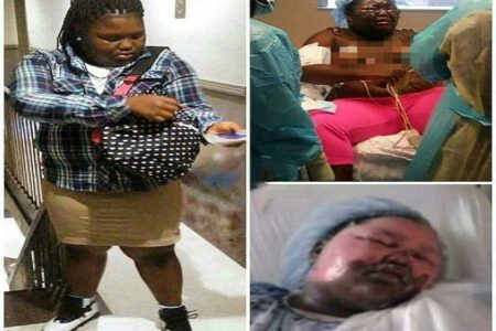 Girl Badly Burned With Boiling Water At Bronx Sleepover Released From Hospital