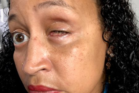 Calls On Bronx DA To Dismiss Charges Against Johanna Pagan-Alomar Who Lost Her Eye During Violent Arrest